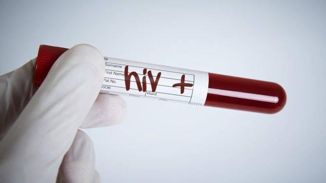 Tratamiento experimental contra el VIH